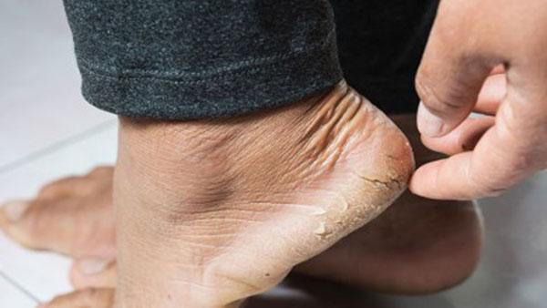 জেনে নিন শীতে পা ফাটার কারণ ও প্রতিকারের উপায়